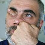 fingernoseeye